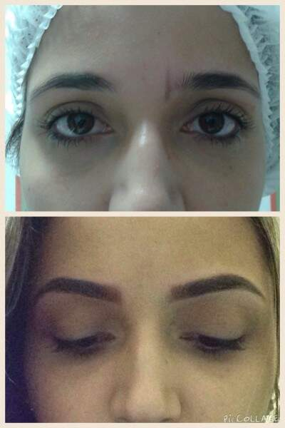 O tratamento de Dermopigmentação custa R$420,00 (Foto: Divulgação)