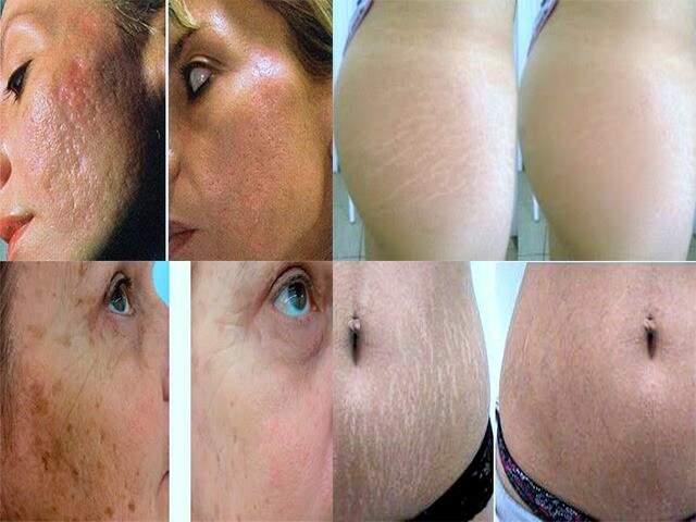 Antes e depois da micropuntura, um tratamento facial contra marcas, e tratamento para camuflar as estrias.