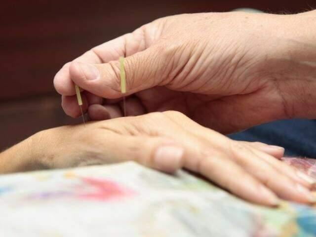 Acupuntura pode ser usada como tratamento para crises (Foto: Arquivo)