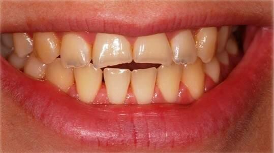 Dentes de paciente antes da técnica: eram de tamanho, formato e cor assim.