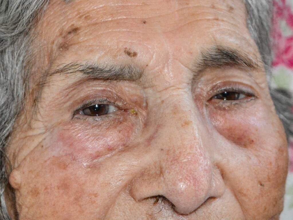 Alzheimer trouxe a despedida da casa, mas não apagou a força com que Francisca encara a vida (Foto: Kimberly Teodoro)