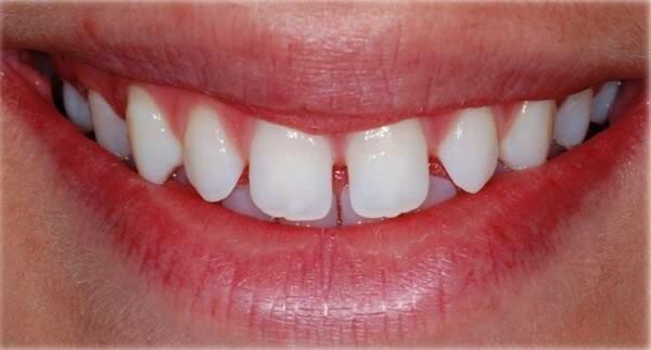 As lâminas de porcelana permitem também correção de espaço entre os dentes.