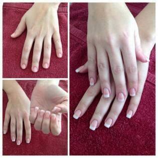 Antes e depois de unhas em gel  - Foto Divulgação