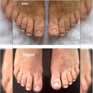 Unhas em gel nas unha dos pés - antes e depois. Foto divulgação