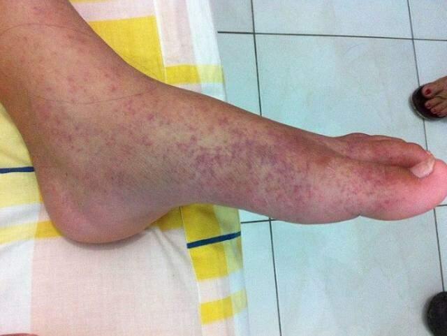 Dor intensa nas articulações de início agudo, acompanhada ou não de inchaço são alguns dos sintomas. (Foto: Reprodução/Internet)