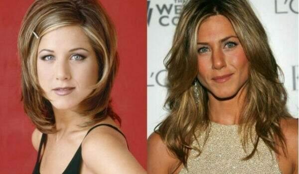 Jennifer Aniston é uma das atrizes que teria feito bichectomia