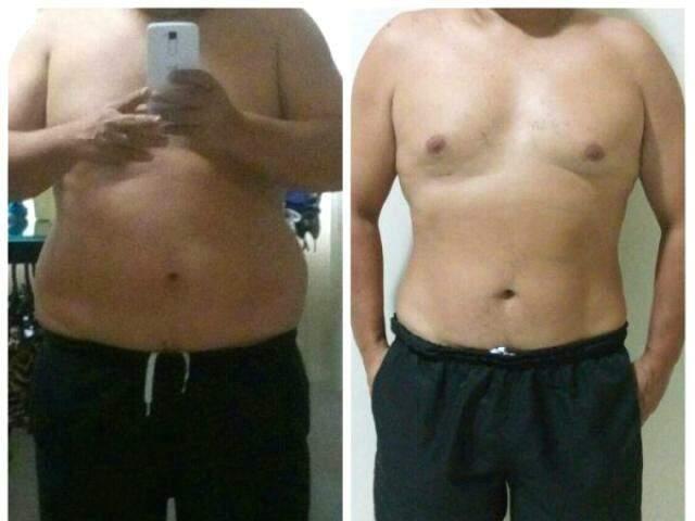 Aos 39 anos, paciente emagreceu 17 quilos durante o tratamento.