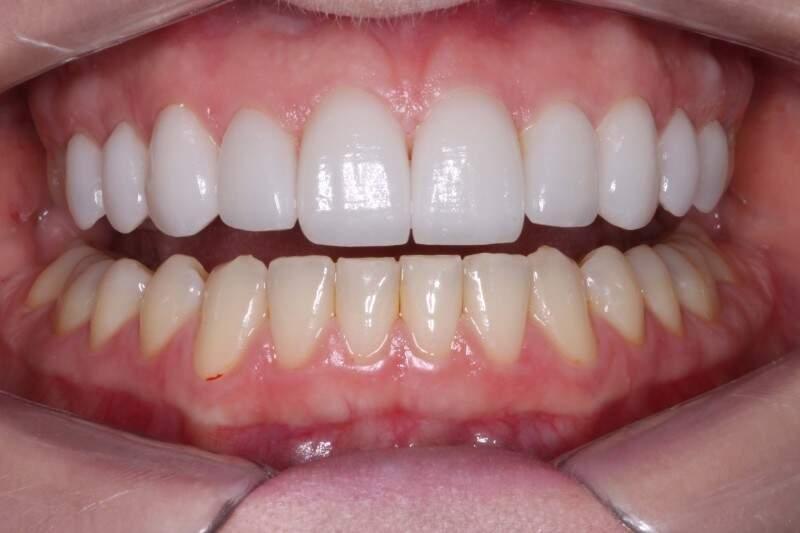 A colocação engloba três etapas: moldagem, planejamento do sorriso, aprovação do paciente  para então, confeccionar as lentes.