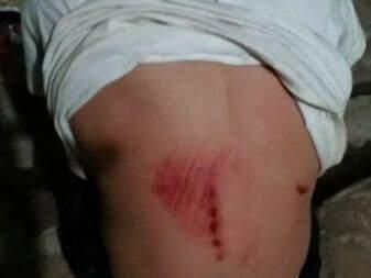 Marcas que ficaram nas costas do menino evidenciam a gravidade das agressões (Foto: Direto das Ruas)