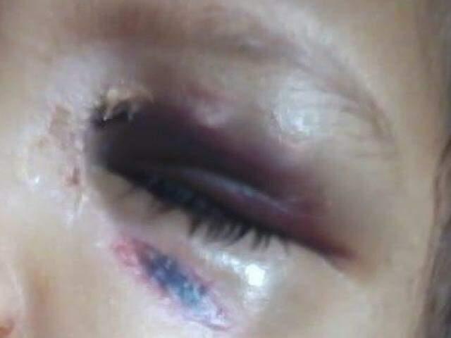 Menina de 3 anos está com olho roxo, aparente queimadura na boca e queda de cabelo. Tia nega agressões (Reprodução)