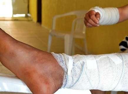 Trabalhadores rurais sobrevivem a ataque de onça-pintada no Pantanal