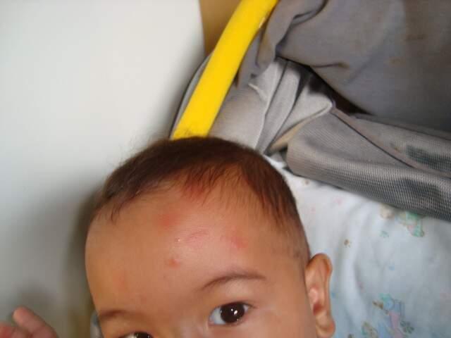 Anderson tem um filho de seis meses, e mostra a testa da criança cheia de marcas de picadas de mosquito.