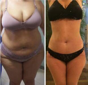 Cliente perdeu 35 quilos.