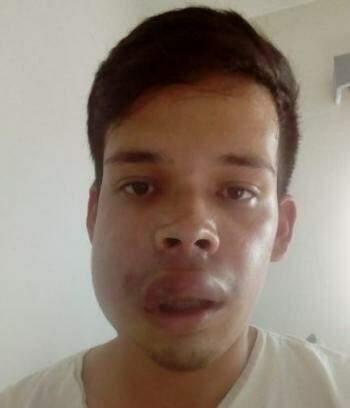 Hernán está internado no Hospital Universitário. (Foto fornecida pela família)