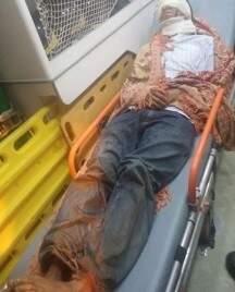 Morador da região do Taquari, foi atacado por um búfalo e teve ferimentos na cabeça e no rosto. (Foto: Divulgação/ Corpo de Bombeiros)