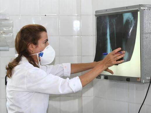 Profissional de saúde analisa raio-x de pulmão (Foto: Agecom Bahia/Agência Brasil/Divulgação)