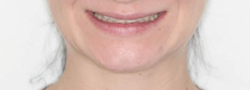 """No """"antes"""" das lentes, dentes pequenos e sorriso envergonhado."""