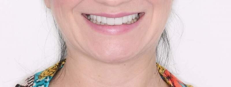 """O """"depois"""" nem parece o mesmo sorriso, mas lentes aumentaram tamanho e clarearam na cor."""