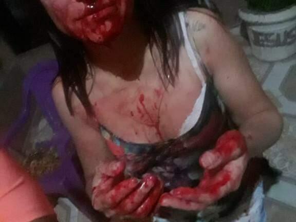 Vítima ensanguentada logo após ser agredida. (Foto: Divulgação / Polícia Civil)