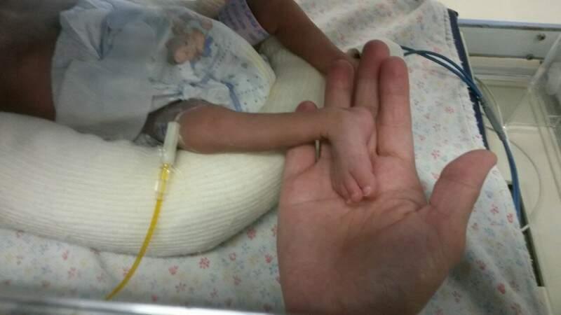Fernanda nasceu prematura, com 655 gramas.