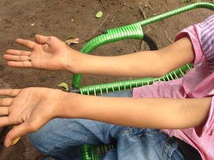 Com braço quebrado, indígena de 12 anos espera atendimento há 3 meses