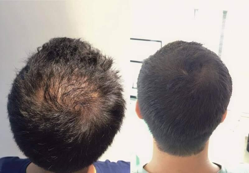 Procedimento elimina contraste e brilho que acentuam falta de cabelo em pessoas calvas.