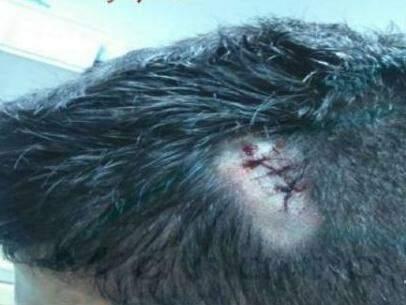 Policial levou seis pontos na cabeça (Fotos: Maracaju Speed)