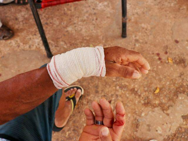 Cachorro atacou a mão de homem e por pouco não mordeu também um dos braços (Foto: Henrique Kawaminami)