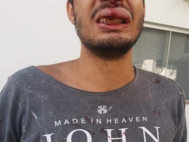 Vítima com a boca machucada após agressões. (Foto: Viviane Oliveira)