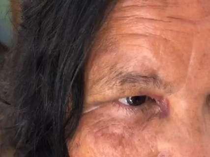 Marcas pelo corpo ainda lembram susto de ataque de pitbull contra idosa