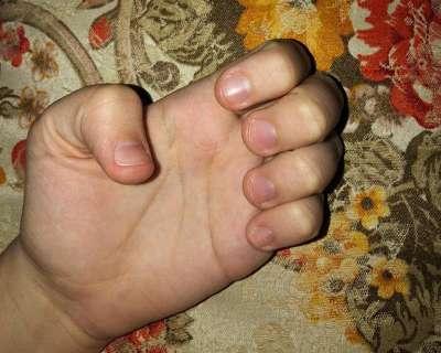 Quem sempre roeu unhas ensina como resistir à mão na boca
