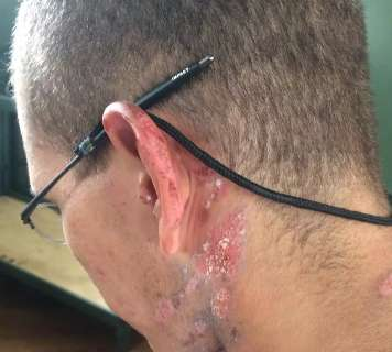 Sargento joga álcool gel e ateia fogo em recruta dentro de quartel da Capital