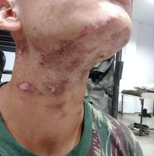 Depoimento de recruta mostra tentativa de abafar tortura dentro de quartel