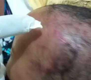 Após denúncia de maus tratos, bebê de 5 meses é encontrado com crânio fraturado