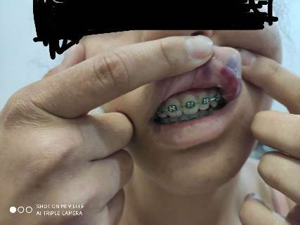 Em 12h de tortura, adolescente tem nariz quebrado e cabelo cortado com faca