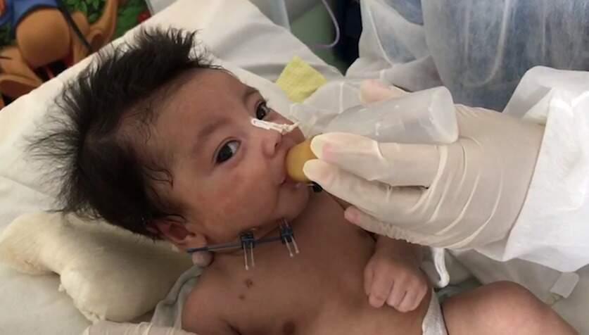 """Pequeno Erick já pegou a mamadeira; precisa de só mais um pouquinho de """"técnica"""" para ganhar alta médica (Foto: Vídeo/Reprodução)"""