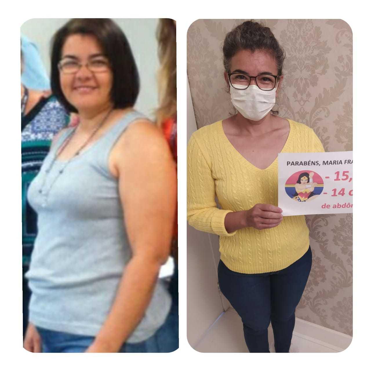 Antes e depois de Maria Francisca servem de inspiração: funcionária pública perdeu 20 quilos com a Magrass. (Foto: Divulgação)