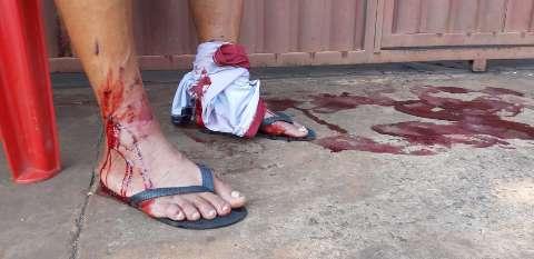 Pai e filho são atacados por pitbull no bairro São Jorge da Lagoa