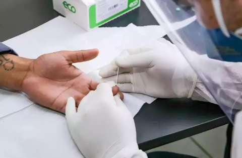 Com 479 casos de covid em 24h, MS atinge 79,5 mil infectados