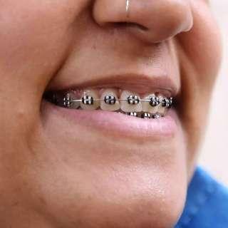 Meninada usa até fio de vassoura para ter aparelho nos dentes